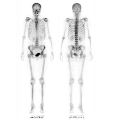 Nuclear_Med_Skeleton-1